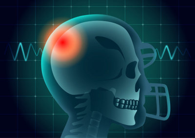 Mans skull showing through a football helmet., CBD for athletes