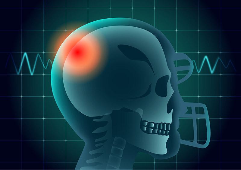 Mans skull showing through a football helmet., CBD for athletes